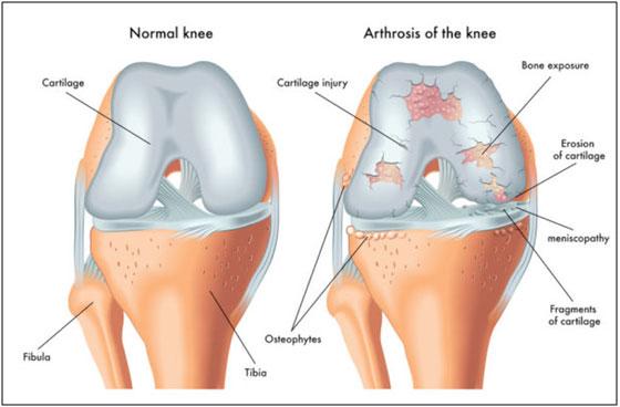 Normal Cartilage vs Damaged Cartilage