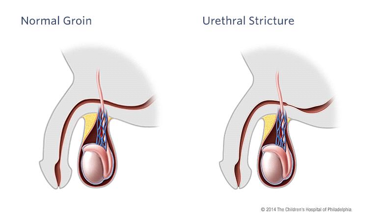 Normal Groin vs Urethral Stricture